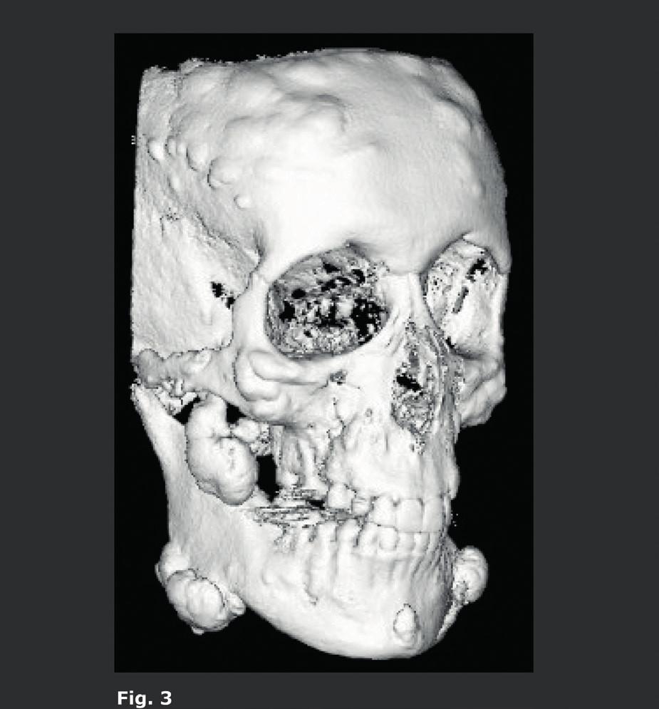 Pacient s Gardnerovým syndromem.