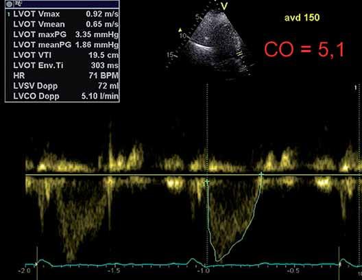 Obr. 1A–1E. Ovlivnění trvání diastoly a srdečního výdeje (CO) při programaci atrioventrikulárního zpoždění (AVD). Obr. 1A. Zpoždění 170 ms odpovídá délka diastoly 330 ms. Obr. 1B, 1C. Zkracování AVD znamená prodlužování diastoly (obr. 1A–1C), což může vést k lepšímu plnění komory a většímu CO u téhož pacienta (obr. 1D, 1E). Obr. 1D, 1E. Srdeční výdej (CO) měřený jako funkce časově rychlostního integrálu ve výtokovém traktu levé komory při AVD 170 a 150 ms u téhož pacienta.