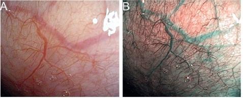Zdravá sliznice nosohltanu v bílém světle (A) a NBI (B), slizniční kapiláry jsou zobrazeny hnědě a podslizniční cévy azurově.