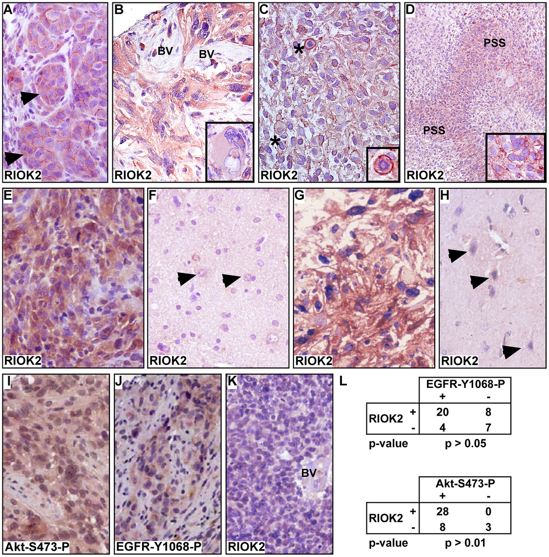 RIOK2 overexpression in GBM tumors is associated with Akt signaling.