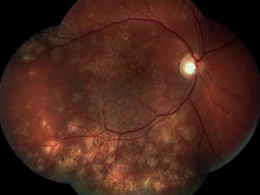 Pravé oko. Původní aktivní ložiska na sítnici se postupně ohraničují a částečně pigmentují. Makulární edém se vstřebával.