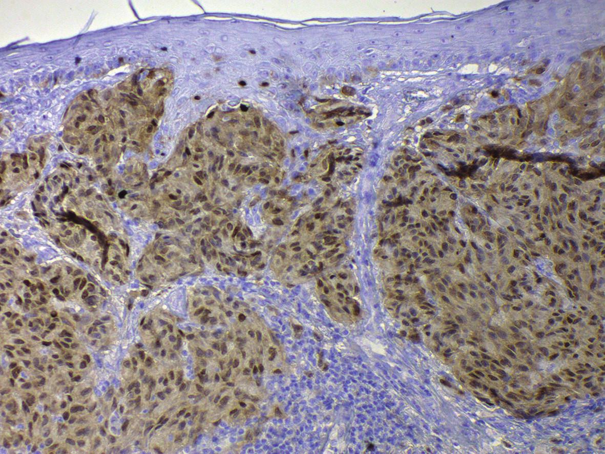 Pozitivita SOX10, jaderná pozitivita s nespecifickým signálem v cytoplazmě, v buňkách melanomu Breslow 1,7, zvětšeno 200x