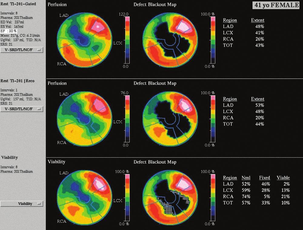 Zobrazení perfuze myokardu pacientky po aplikaci radiofarmaka. Výpadek perfuze anteroseptálně, apikálně a inferolaterálně časně po aplikaci <sup>201</sup>Tl – kvantitativně se jedná o perfuzní defekt v rozsahu 43 % z levé komory (obr. 4 nahoře), při pozdním zobrazení se nález prakticky nemění (obr. 4 uprostřed). V oblasti perfuzního defektu převažuje nízký stupeň vychytávání radiofarmaka pod 50 % maxima, což svědčí pro neviabilní myokard v rozsahu 33 % z levé komory (obr. 4 dole).