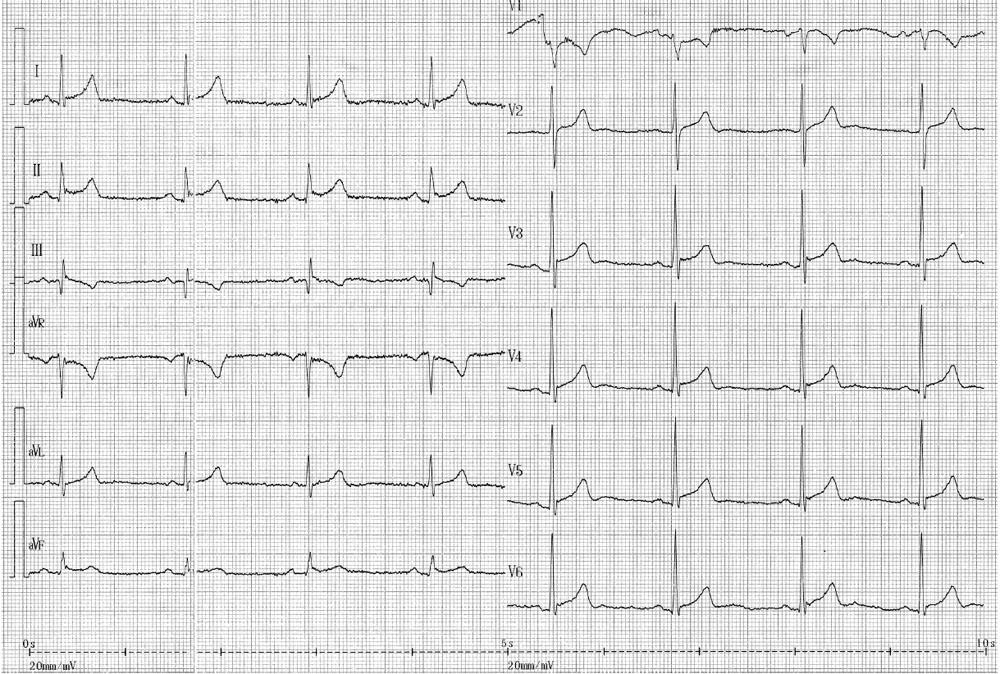 Popis EKG: sinusové vlny P, frekvence komor 52/minutu. P-Q 0,20 s. Komplexy QRS široké 0,08 s, elektrická osa 45 stupňů, ve V1 komplex rS, přechodová zóna V3-4. Úseky S-T jsou v povrchových svodech elevovány až o 2 mm a ve většině svodů začínají uzlíkem v elevovaném junkčním bodě. Vlny T jsou vysoké, asymetrické.