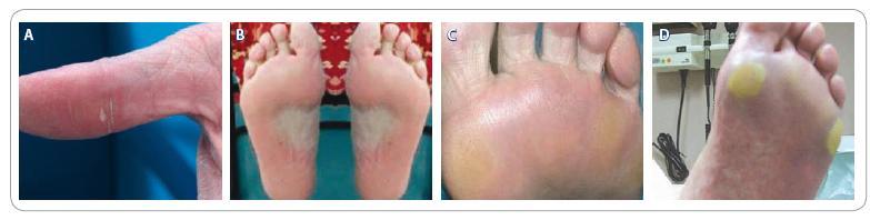 Příklady HFSR: 1A. Erytém a lamelární olupování, 1. stupeň HFSR; 1B. Erytém a ložiskové hyperkeratózy, 2. stupeň HFSR; 1C. Erytém a ložiskové hyperkeratózy, 2. stupeň HFSR; 1D. Erytém a výrazné ložiskové hyperkeratózy s tvorbou puchýřů, 3. stupeň HFSR.