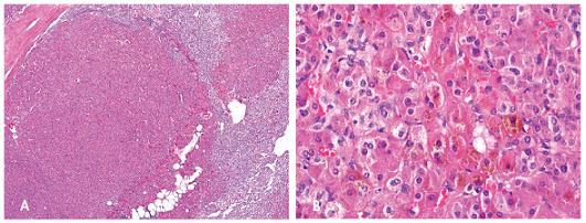 Primární pigmentovaná nodulární adrenokortikální choroba tvořená dobře ohraničenými noduly (A, zvětšení 40x) složených z velkých buněk s cytoplazmou obsahující hnědý pigment (B, zvětšení 400x). Barveno hematoxylinem eozinem.