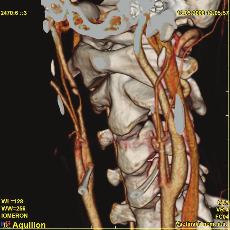 Patrné poškození a trombóza ACI vpravo  Fig. 3. Trauma and thrombosis of the ACI is detectable on the right