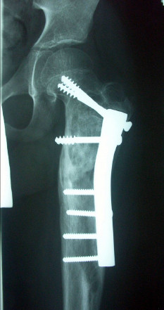 Obr. 2b: Na rentgenovém snímku za 5 měsíců po osteosyntéze subtrochanterické fraktury T dlahou, exkochleaci a alogenní spongioplastice cysty štěpy od matky je patrné zhojení zlomeniny a prohojování cysty