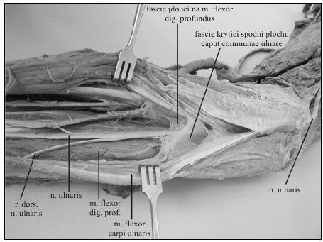 Průběh n. ulnaris mezi fasciálními listy v proximální části předloktí (fotografie preparátu J. Charamzy)