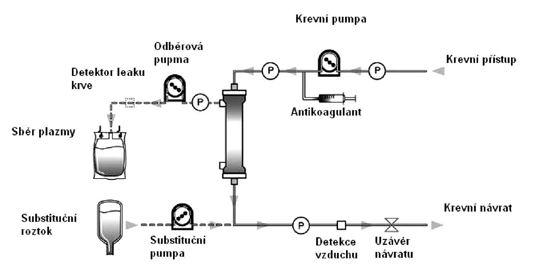 Schéma mimotělního okruhu membránové plazmaferézy