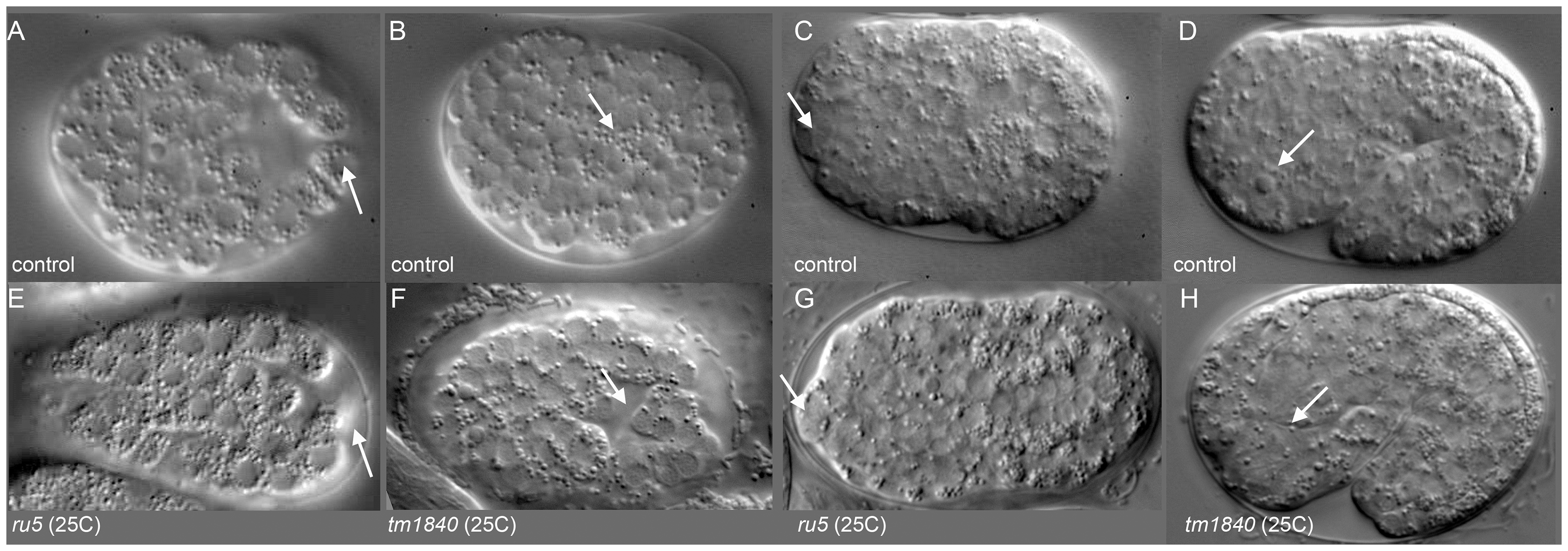<i>pmr-1</i> mutant embryos show differences in the positioning of cells during and after gastrulation.