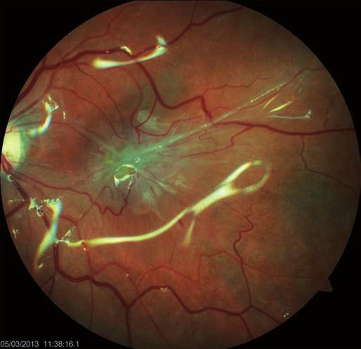 Pooperační foto očního pozadí 3 měsíce od zákroku, odlesky silikonové tamponády a výrazná epimakulární vazivová membrána (pucker). BCVA 1 měsíc po operaci byla 20/40, postupně klesla na 20/200 ve 3. měsíci sledovací doby.