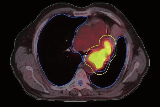 Dlaždicobuněčný karcinom způsobující atelektázu, stejný pacient jako na obr. 3. Kontrurace na základě PET/CT dat. Zde je patrné zmenšení velikosti PTV vynecháním části kolabované plíce.