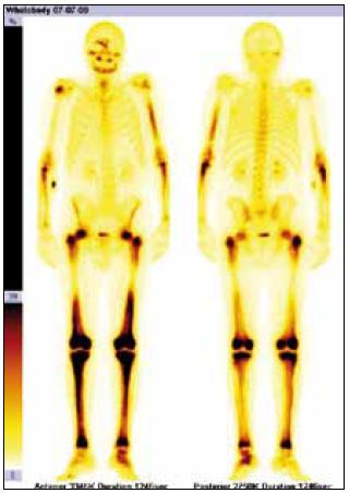Scintigrafie skeletu Tc pyrofosfátem. Zvýšená akumulace radiofarmaka v dolních končetinách je typickou známkou Erheimovy-Chesterovy nemoci.