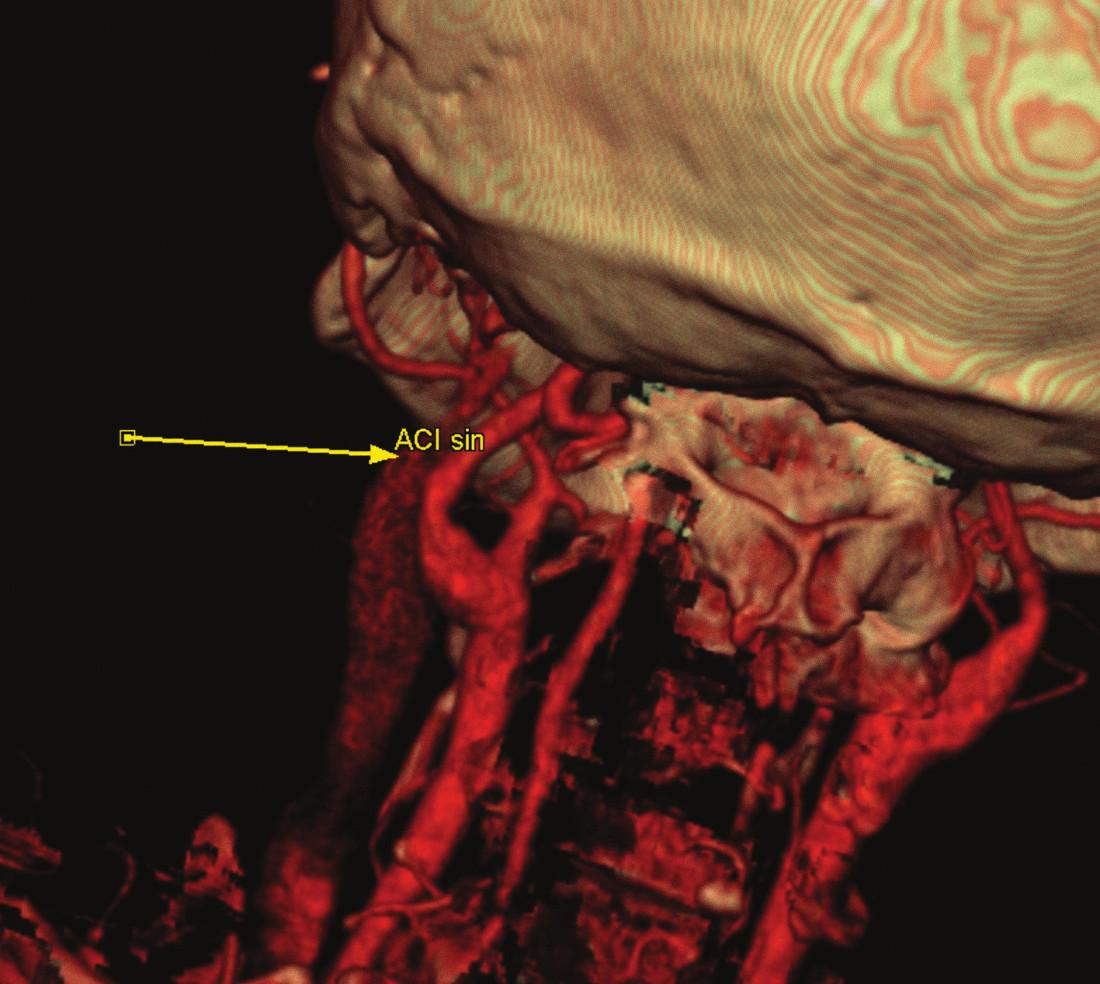Kontrolní pooperační CT-angiografie.