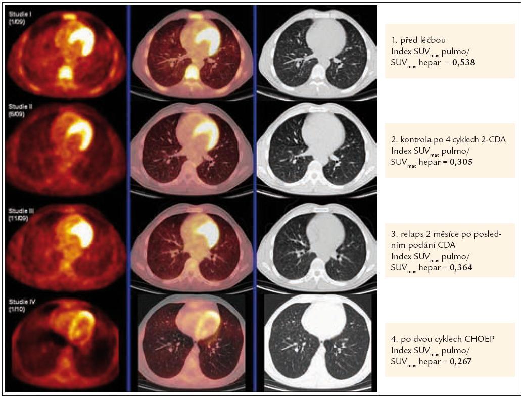 Korelace PET-CT plic a indexu SUV<sub>max</sub> pulmo/SUV<sub>max</sub> hepar před léčbou, kdy byl postižen plicní parenchym četnými nodularitami, typickými pro plicní formu LCH, po 4 cyklech léčby 2-chlorodeoxyadenosinem, kdy tyto nodularity vymizely, dále v době relapsu nemoci, kdy došlo k recidivě znovu i v plicním parenchymu (opět nové plicní nodularity) a po 2 cyklech léčby relapsu režimem CHOEP (cyklofosfamid, etoposid, adriamycin, vinkristin a prednison), kdy opětovně se aktivita nemoci minimalizovala.