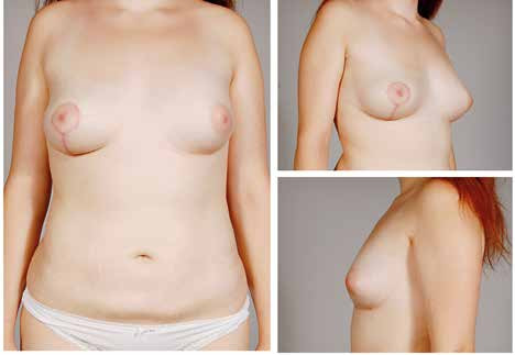 Fig. 5. The patient with tuberous breast malformation on the left after 2 sessions of lipomodelling and contralateral vertical mastopexy with augmentation by fat grafting in décolleté area – 6 months follow-up