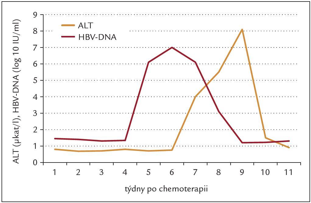 Průběh reaktivace chronické hepatitidy B po 1 cyklu chemoterapie. Vzestup viremie předchází vzestupu aktivity ALT.
