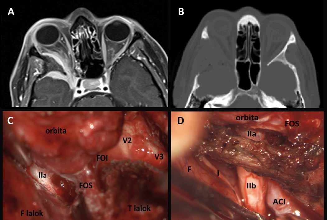 Sphenoorbitální meningeom vpravo před operací (A) a po radikální resekci (B), intraoperační fotografie (C, D) ukazují rozsah resekce infiltrované kosti.