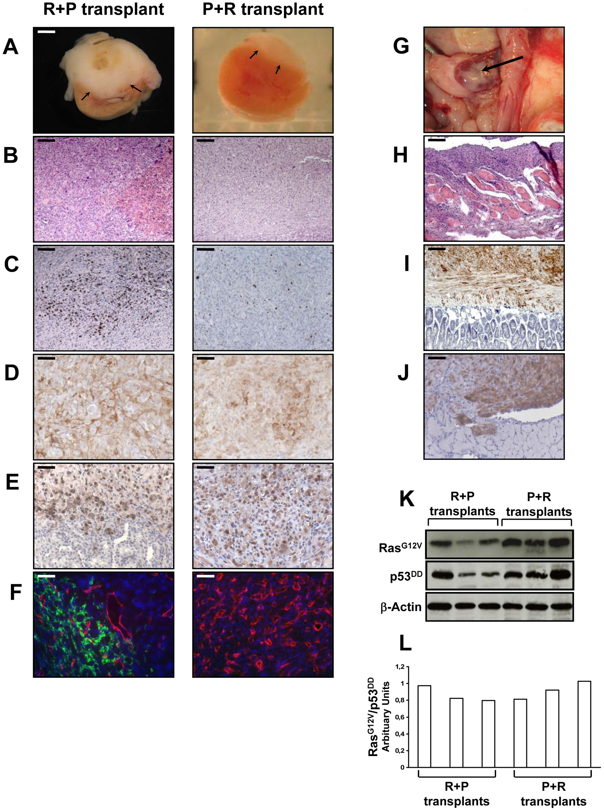 <i>In vivo</i> characterization of tissues formed at day 35 following the transplantation of R+P or P+R cells.
