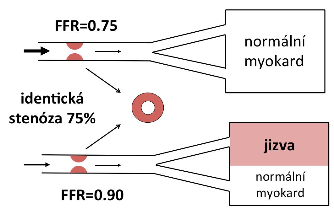 Diskrepance mezi morfologickým nálezem a funkčním dopadem. FFR zohledňuje masu viabilního myokardu, který je postiženou tepnou zásobován (upraveno dle: Pijls, Sels, 2012).