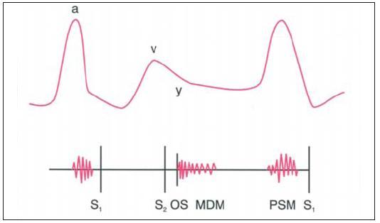 """Schematická ilustrace důležitých fyzikálních nálezů u trikuspidální stenózy. Prominující vlna """"a"""", pomalý sestup """"y"""" a crescendo-decrescendo diastolický šelest, který zesiluje během inspirace. Může být též otevírací zvuk a presystolický šelest."""