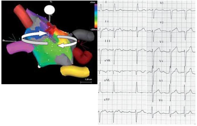 Povrchové EKG makroreentry síňové tachykardie po RF ablaci pro permanentní FiS (levý panel). Tachykardie využívá zónu pomalého vedení mezi kontralaterálními plicními žilami. Reentry okruh je naznačen šipkami. Šedě je zobrazena jizva (síňová tkáň kolem plicních žil po předchozích RF ablacích). Nejčasnější aktivace je zobrazena červenou barvou, nejpozdější pak purpurovou. Série ablačních lézí (cihlově červené tečky) terminovala arytmii, která následně nebyla vyvolatelná (pravý panel).