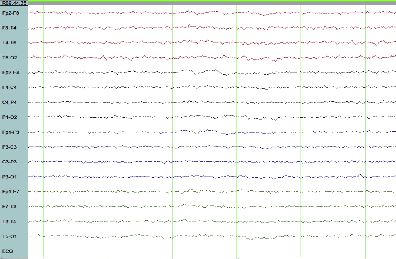Electroencephalogram after Combination Anti-Epileptic Therapy with the Focal Spikes Abolished