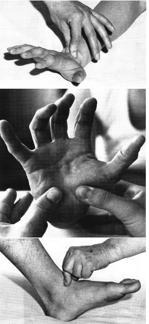 Ukázky manuálních technik proprioceptivní stimulace zápěstí a nohy v metodě R. Brunkow. (Převzato z 3.)