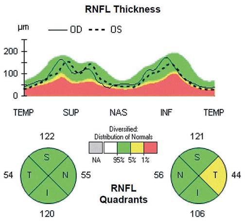 Patologický nález OCT u pacienta s CIS po ON na ľavom oku, kde je viditeľný pokles hrúbky RNFL v temporálnom kvadrante do hraničných hodnôt (podľa normatívnej databázy prístroja OCT).