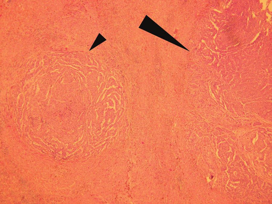 Histologické vyšetření: jaterní metastáza adenokarcinomu žaludku (velká šipka) s dceřiným ložiskem charakteru mikrometastázy v jeho těsné blízkosti (malá šipka). Barvení hematoxylin-eosin, zvětšení 100x Fig. 5: Histopathological investigation: liver metastasis form gastric cancer (large arrow) with satellite micrometastasis in its close proximity (small arrow). Hematoxylin-eosin staining, magnified 100x
