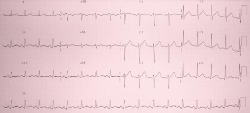 Vstupní EKG.