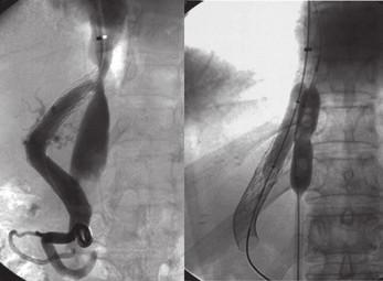 Obraz paralelního stentování dolní duté žíly při její významné stenóze hypertrofickou jaterní tkání. Fig. 3. Picture of parallel stenting of inferior vena cava in significant stenosis by hypertrophic liver tissue.
