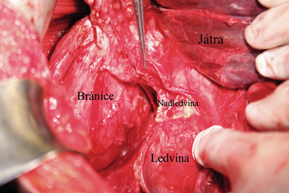Pohled na pravou ledvinu a nadledvinu po kompletní mobilizaci pravého laloku jater a jeho mediální rotaci