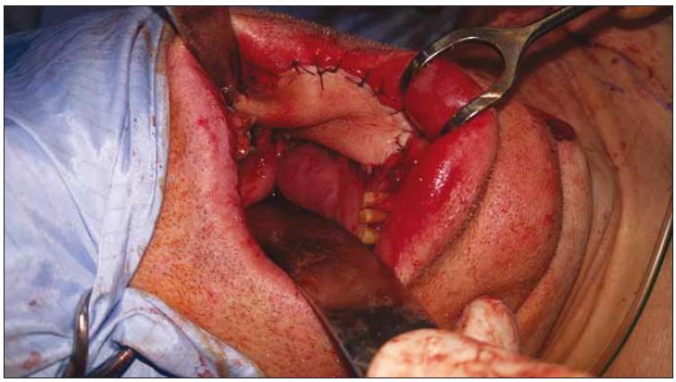 Lalok fixován do defektu (pacient č. 1).<br> Fig. 4. Placement of the flap in the intraoral defect (patient No. 1).