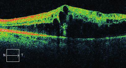 Makrocystický otok makuly prokazatelný na OCT OL (Cirrus, Zeiss)