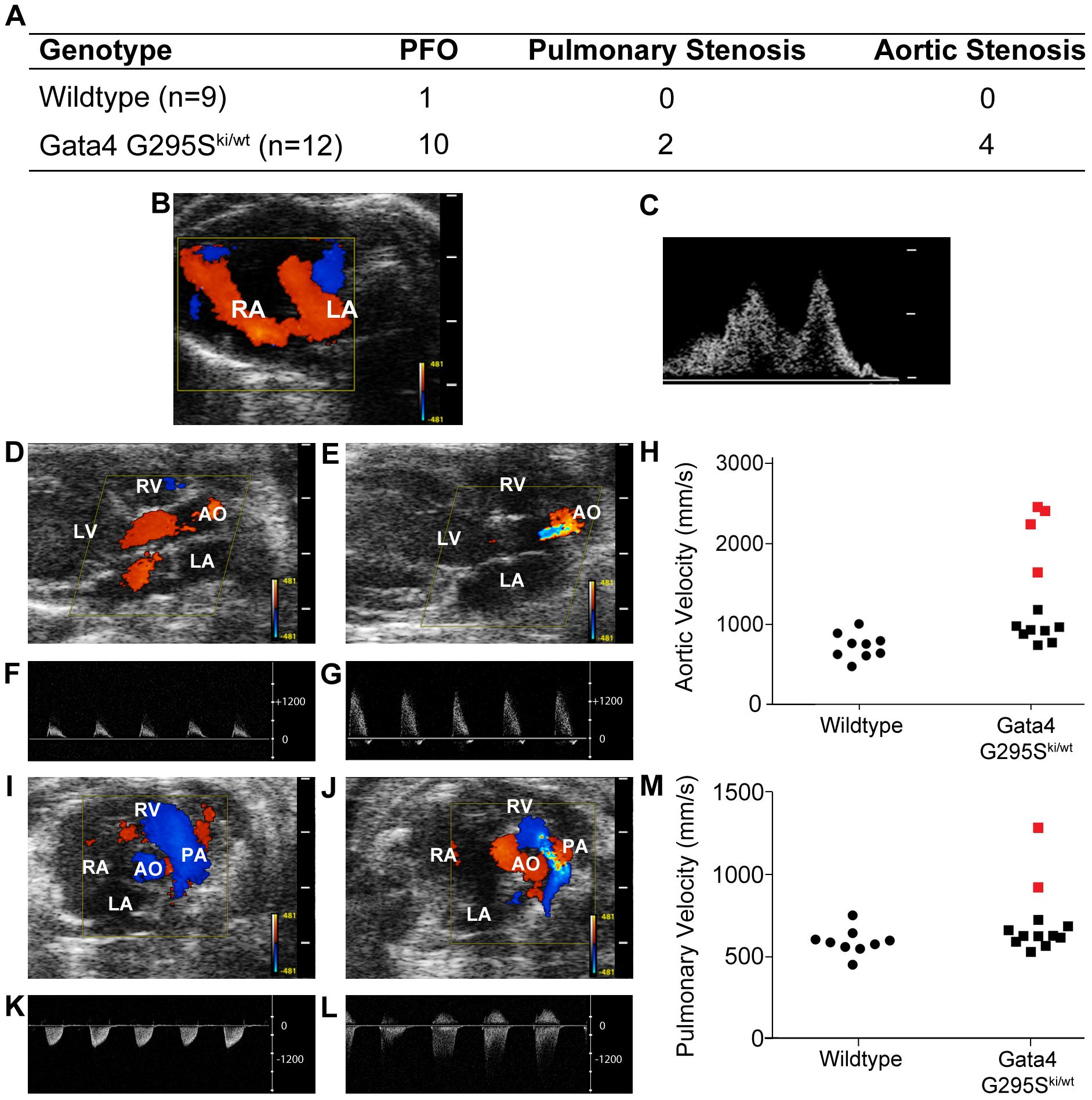 Atrial septal defects and semilunar valve stenosis in <i>Gata4 G295S<sup>ki/wt</sup></i> mice.