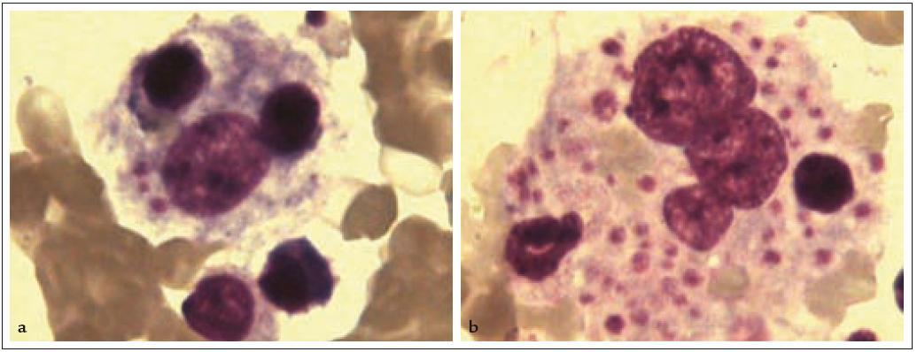 Hemofagocytující makrofágy v kostní dřeni (barvení dle Pappenheima, zvětšeno 1 000krát). 1a: Makrofág s fagocytovaným mononukleárem, holým jádrem a destičkami. 1b: Makrofág s fagocytovanými destičkami, erytrocyty a jádry krvinek.