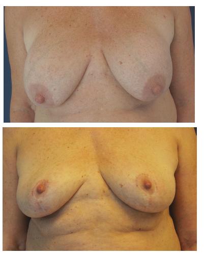 Modelace prsů u třiašedesátileté ženy Fig. 5: Mastopexy in a 63 year old female