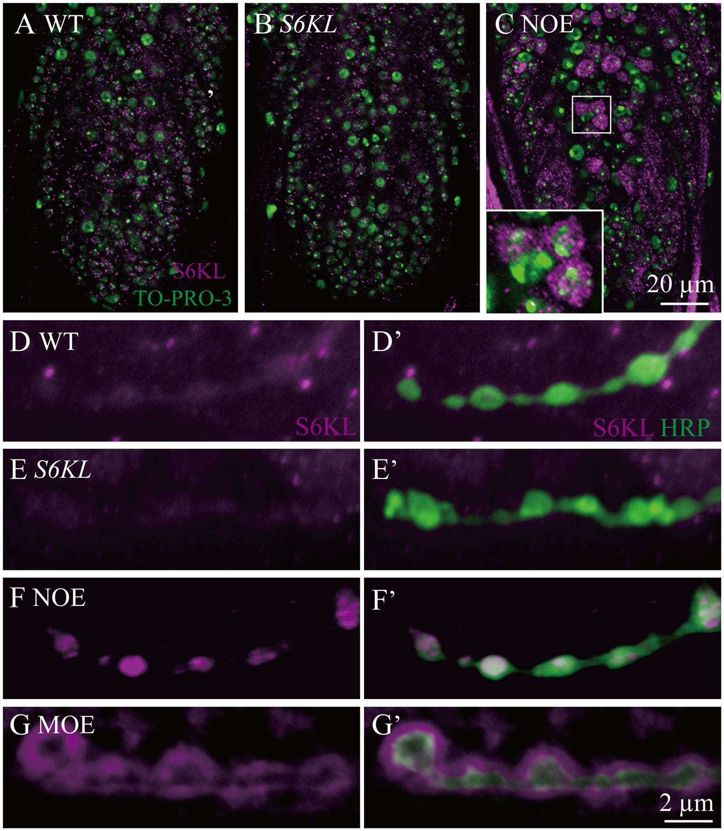 Overexpressed S6KL enriches in pre- and postsynaptic area.