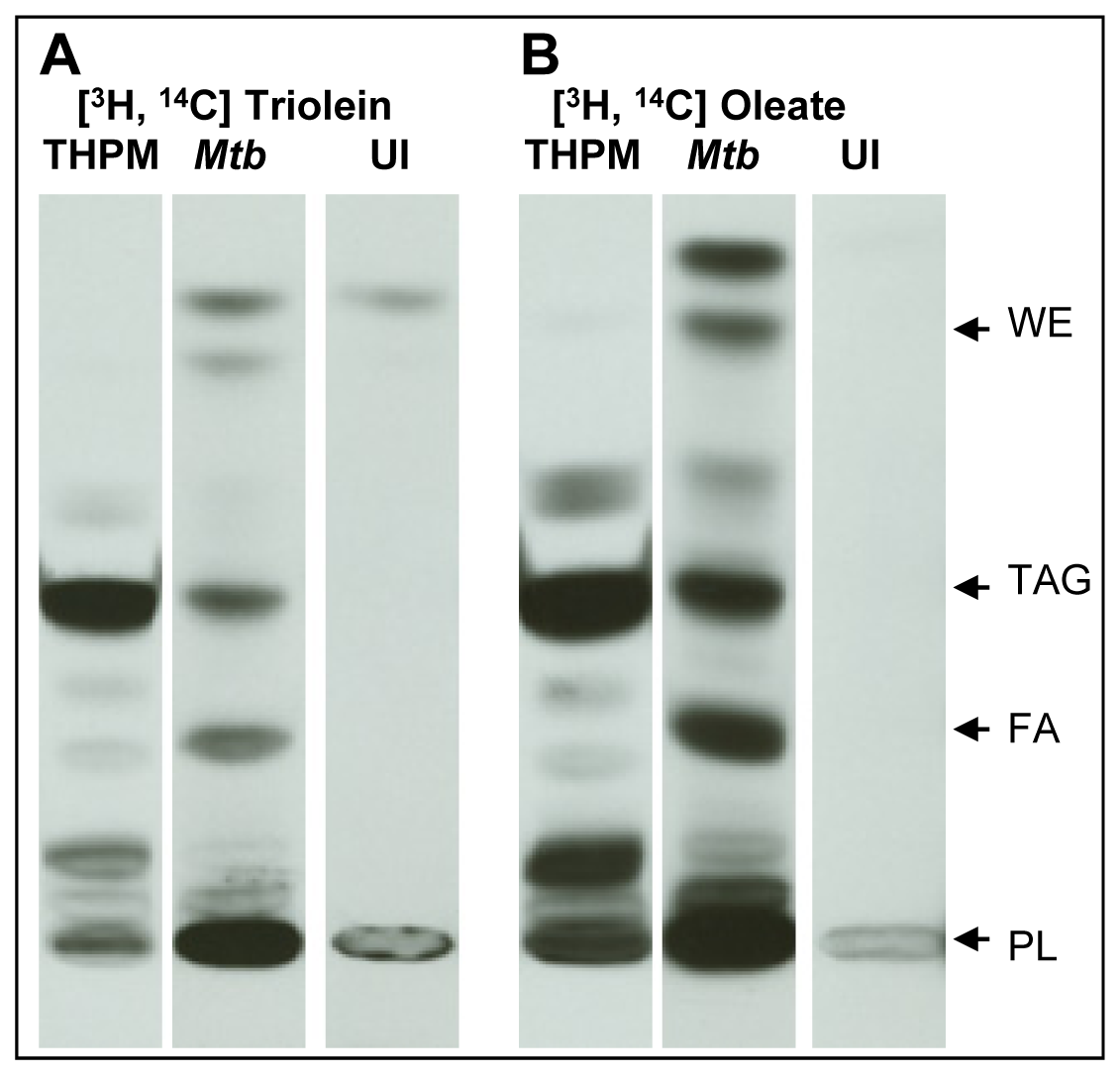 <i>Mtb</i> inside lipid-loaded macrophages imports host fatty acids for storage as TAG.