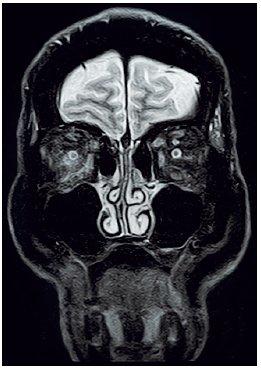 MRI očnic STIR, koronární řez – prosáknutí pojiva pravé orbity retrobulbárně