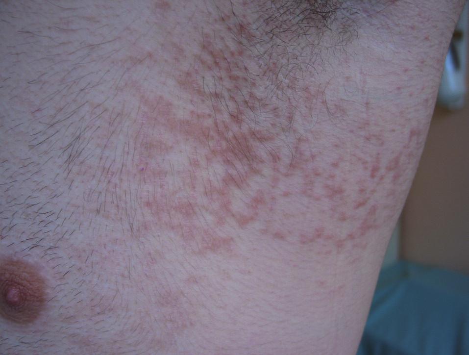 Případ 1: papillomatosis reticularis et confluens.