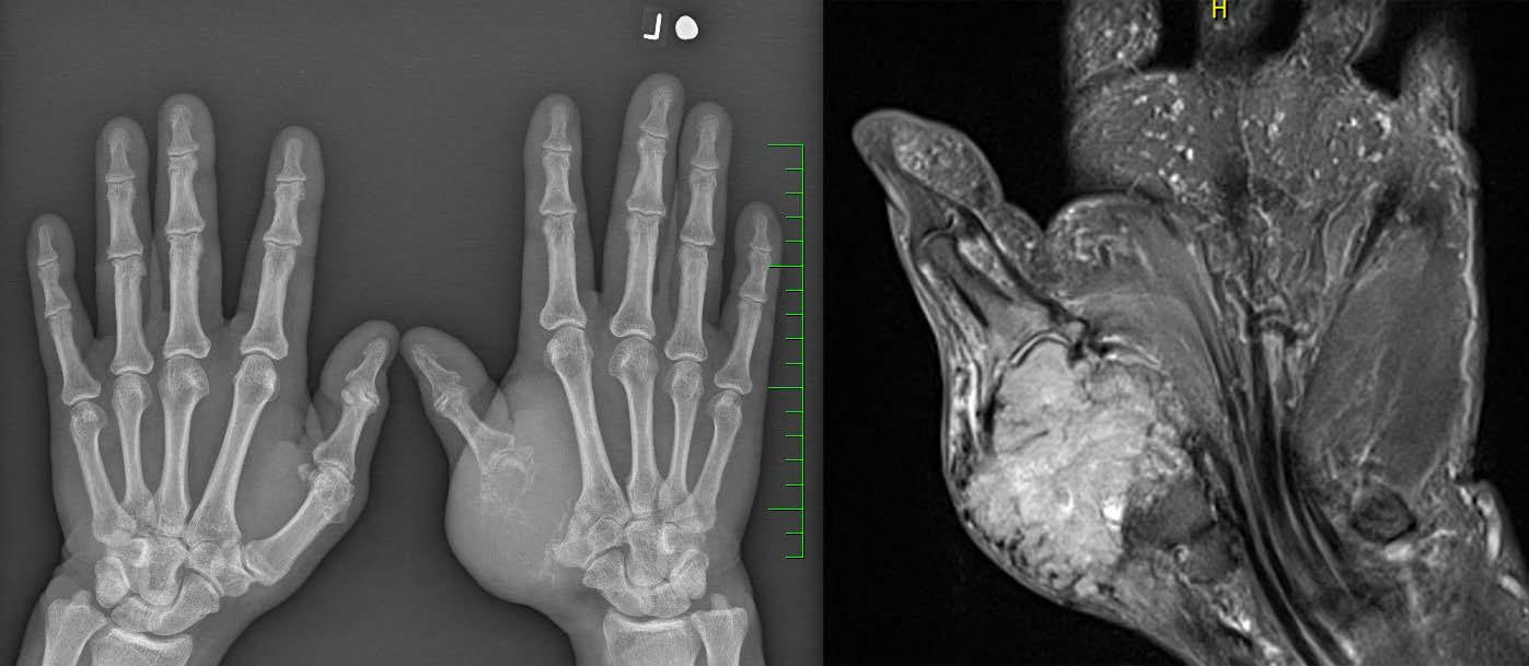 Rtg (vlevo) a MRI (vpravo): metastáza světlobuněčného renálního karcinomu v záprstní kosti palce levé ruky Fig. 1. X-ray (left) and MRI (right): the metastasis of a clear cell renal cell carcinoma in the left thumb