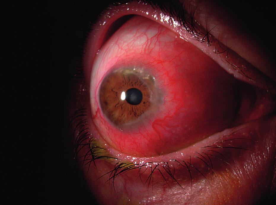 Sklerokeratitida v rámci postižení oka periferní ulcerózní keratitidou.