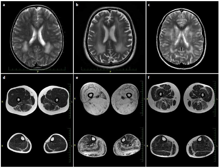 MR mozku v T2 obrazech axiálně (a–c), MR svalů dolních končetin (stehna nahoře, lýtka dole) v T1 obrazech axiálně (d–f). Fig. 1. Brain T2 axial MRI (a–c), T1 axial MRI of lower limb muscles (thighs on the top, calf below) (d–f).