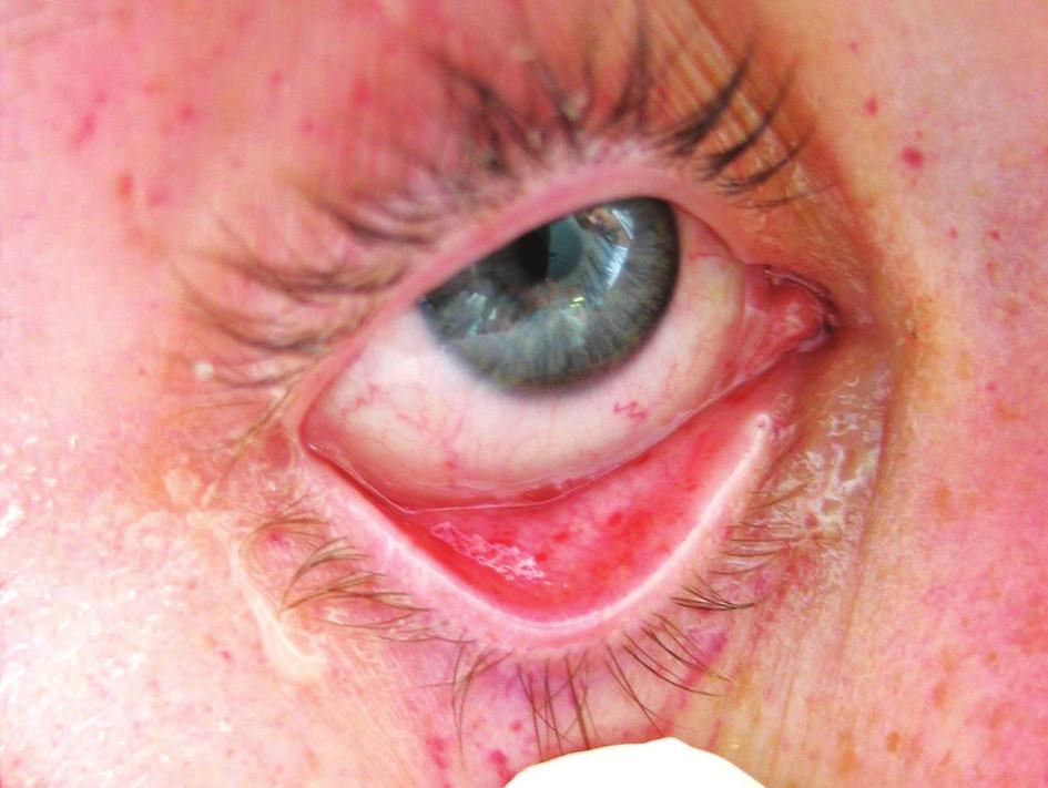 Syndrom tukové embolie – výsev petechií (oční víčko a spojivka)
