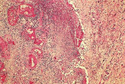 Nekrotický polyp s tromby v cévách je difuzně zánětlivě infiltrovaný (barvení HE, zvětšení 25×)