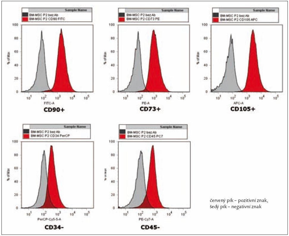 Reprezentativní flow cytometrická analýza MSC z kostní dřeně.