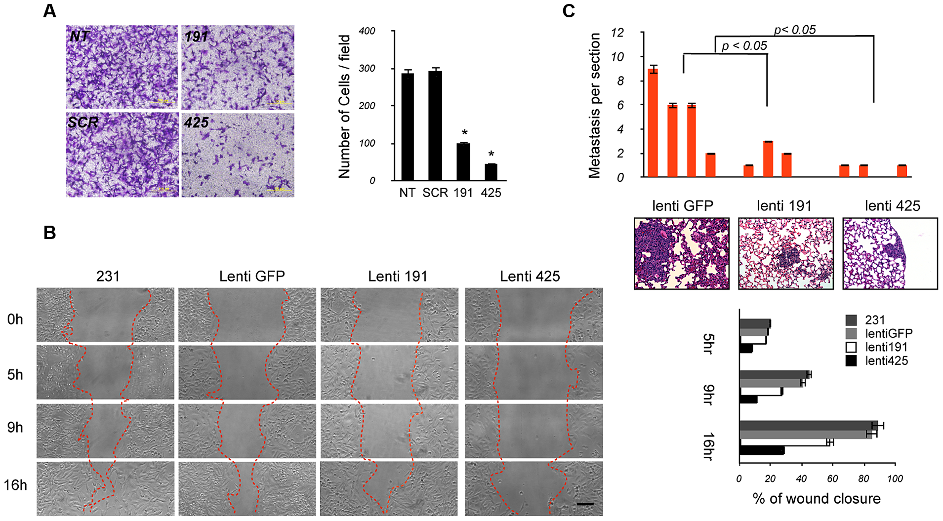 The miR-191/425 cluster reduces migration and metastatic dissemination of breast cancer cells.
